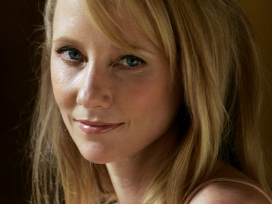 Anne Heche is one of the few celebrities who have come out openly about being affected by Herpes 3